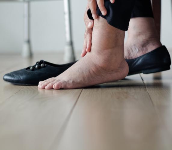 Phù chân khi đứng lâu có phải bệnh suy giãn tĩnh mạch?