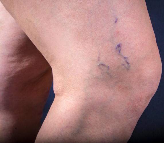 Nổi gân xanh ở chân – Biểu hiện của bệnh suy giãn tĩnh mạch?